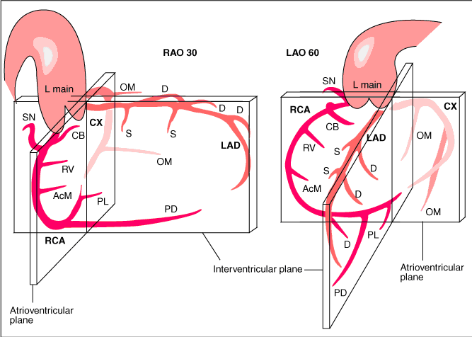 Coronary anatomy - PCIpedia